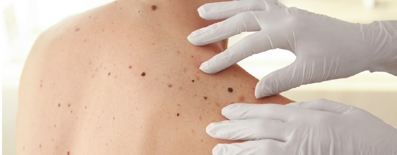 5 doenças de pele que causam manchas acastanhadas