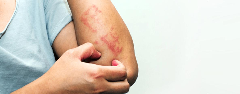 Psoríase: como tratar através da dermatologia?